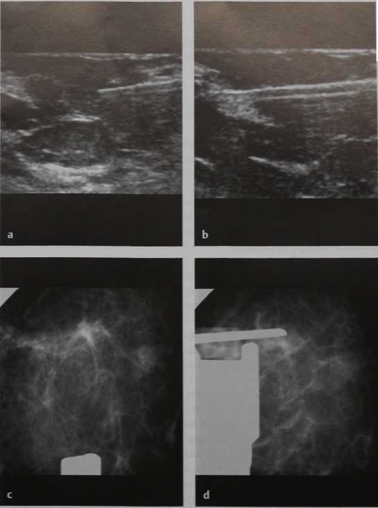 Снимки МРТ и КТ. Core-биопсия