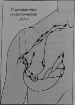 Снимки МРТ и КТ. Сторожевой лимфатический узел