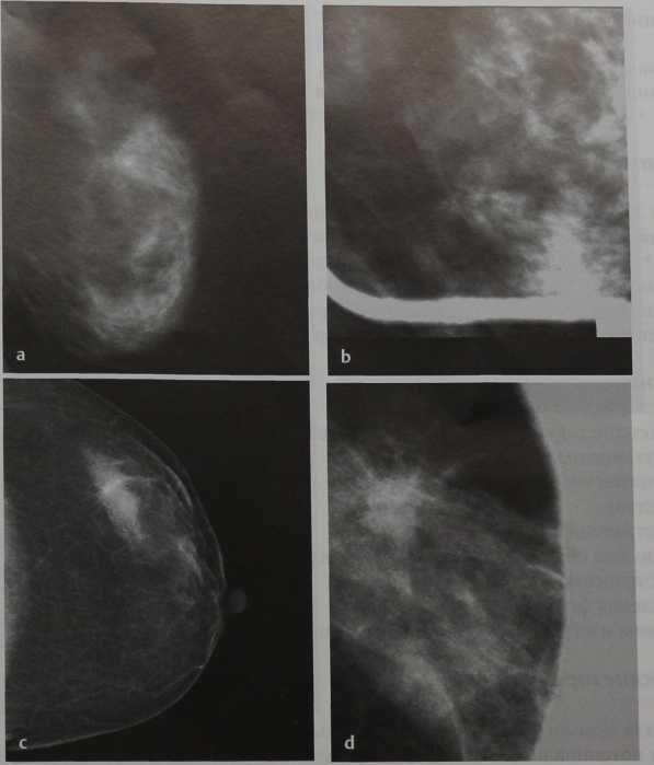Снимки МРТ и КТ. Мамография, локальная компрессия