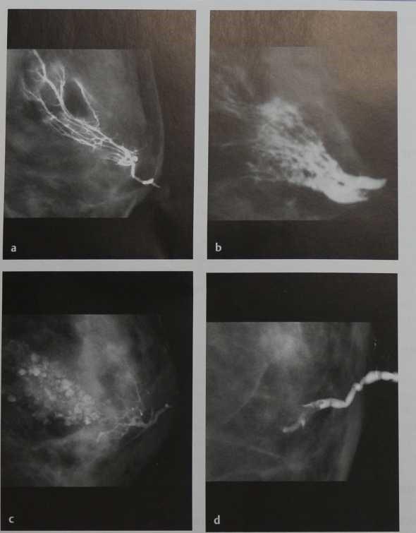 Снимки МРТ и КТ. Маммография, дуктография