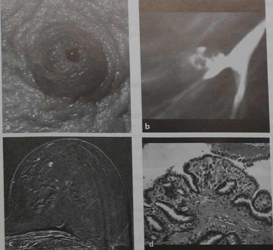 Снимки МРТ и КТ. Кровянистые выделения