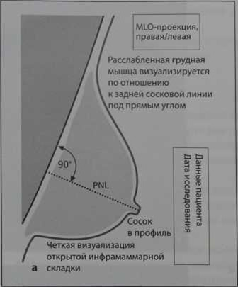 Снимки МРТ и КТ. Критерии качества PGMI
