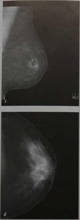 Снимки МРТ и КТ. Критерии качества PGMI2