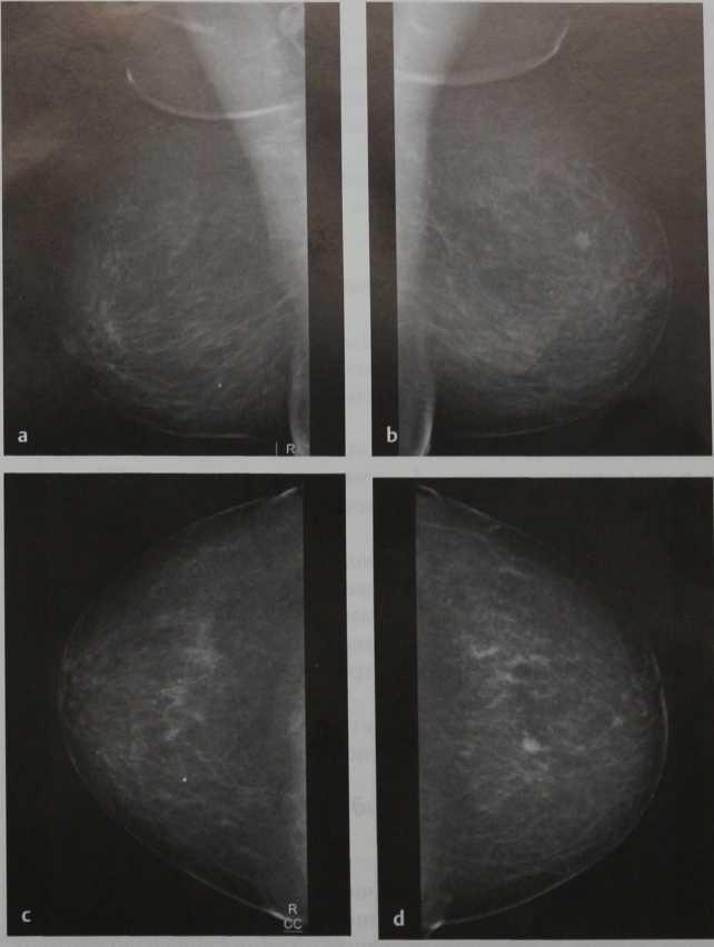 Снимки МРТ и КТ. Косвенные факторы оценки эф.скрининга