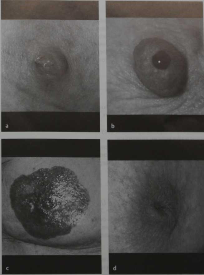 Снимки МРТ и КТ. Изменения соска