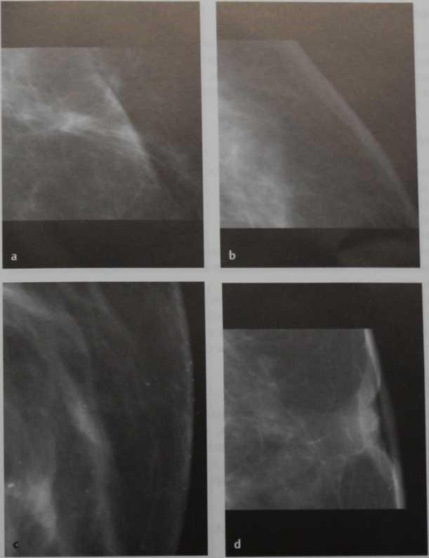 Снимки МРТ и КТ. Изменения кожи