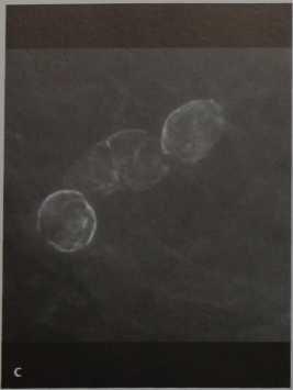 Снимки МРТ и КТ. Доброкачественные кальцинаты