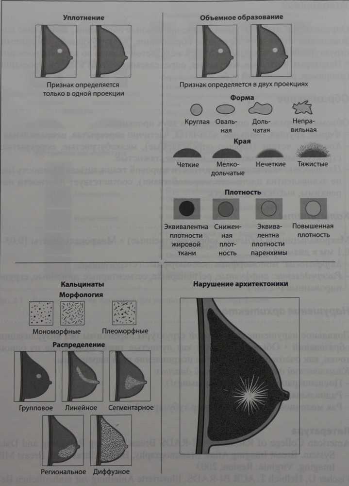 Снимки МРТ и КТ. Диагностические критерии при МР-маммографии