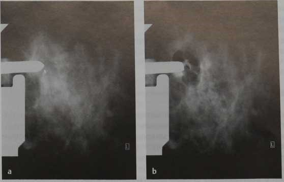 Снимки МРТ и КТ. Вакуумная биопсия