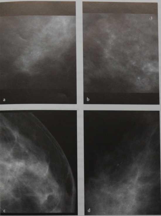 Снимки МРТ и КТ. Аморфные микрокальцинаты