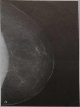 Снимки МРТ и КТ. BI-RADs