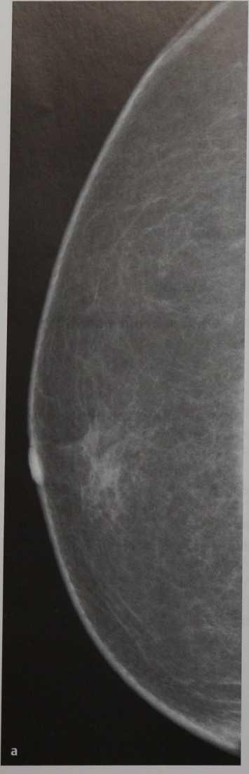 Снимки МРТ и КТ. Псевдогинекомастия