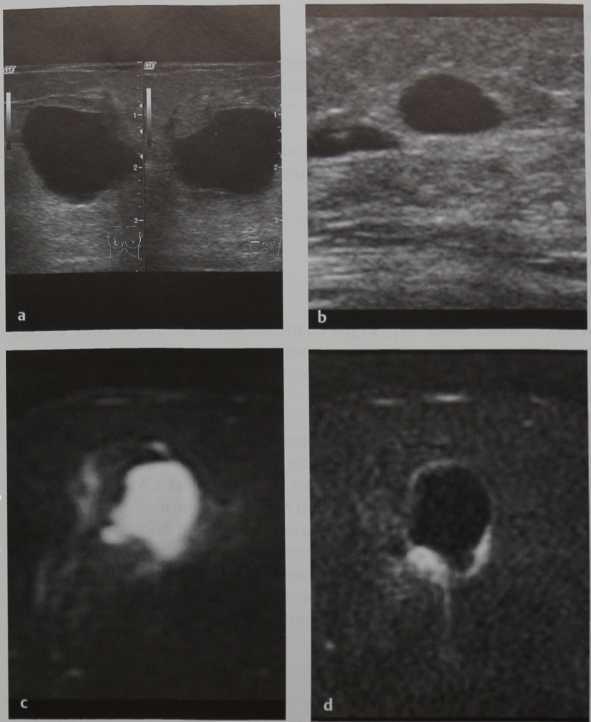 Снимки МРТ и КТ. Сложная киста молочной железы