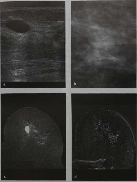 Снимки МРТ и КТ. Простая киста молочной железы