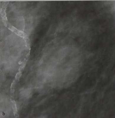 Снимки МРТ и КТ. Поражения кожи- ангиоматозный процесс
