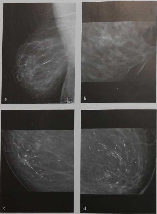 Снимки МРТ и КТ. Плазмоклеточный мастит