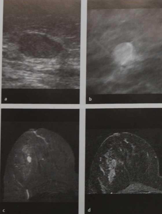 Снимки МРТ и КТ. Папиллома