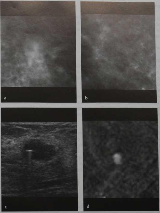 Снимки МРТ и КТ. Очаговый фиброз