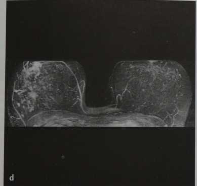 Снимки МРТ и КТ. Множественные периферические папилломы