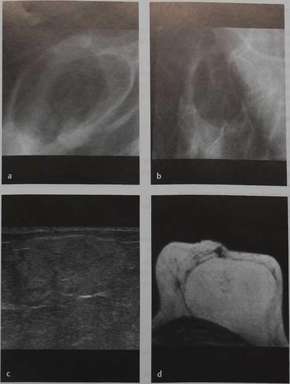 Снимки МРТ и КТ. Липома