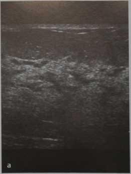 Снимки МРТ и КТ. Изменения молочной железы во время беременности