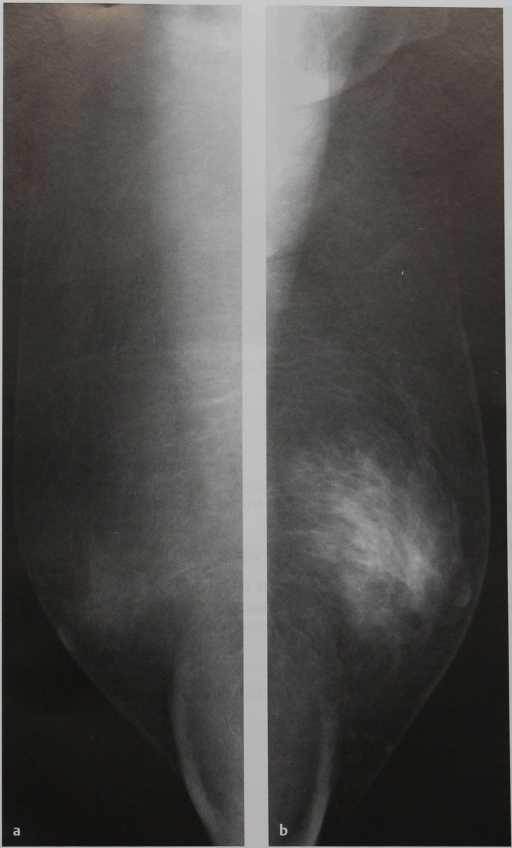 Снимки МРТ и КТ. Гинекомастия