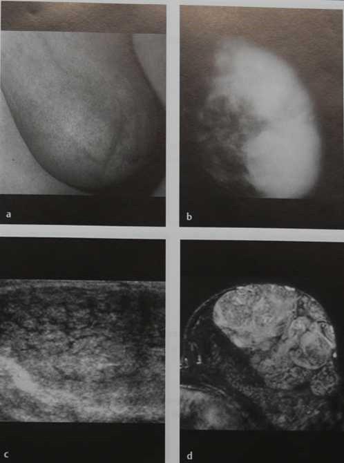 Снимки МРТ и КТ. Гигантская фиброаденома