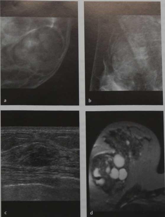 Снимки МРТ и КТ. Гамартома молочной железы