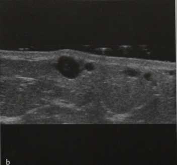 Снимки МРТ и КТ. Болезнь Мондора (тромбофлебит поверхностных вен)