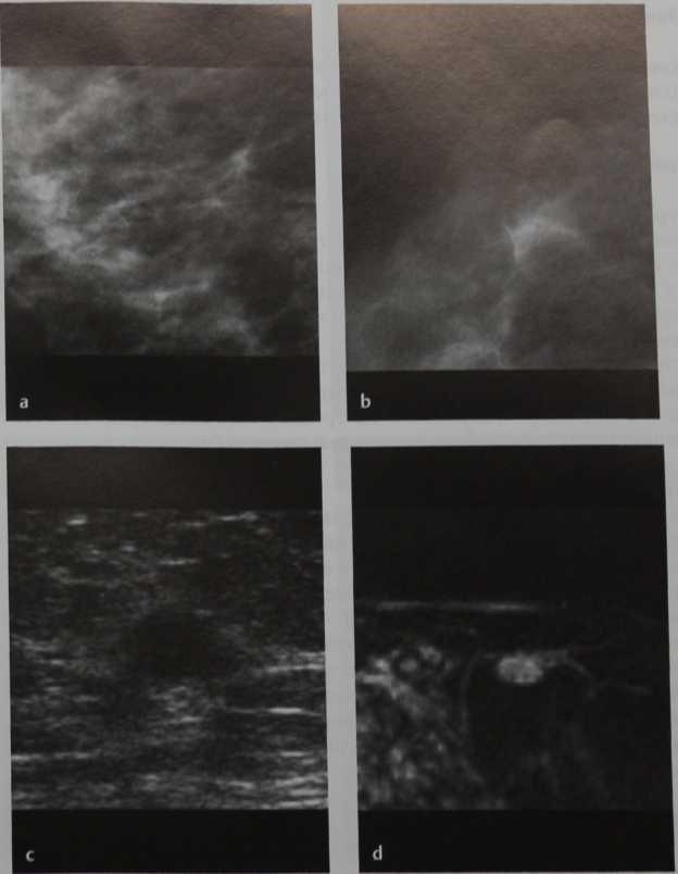 Снимки МРТ и КТ. Атипичная дольковая гиперплазия (ALH)