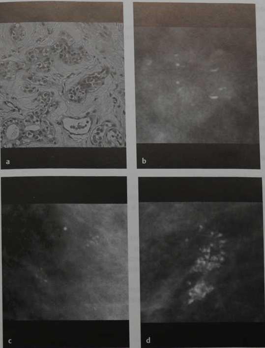 Снимки МРТ и КТ. Аденоз  молочной железы