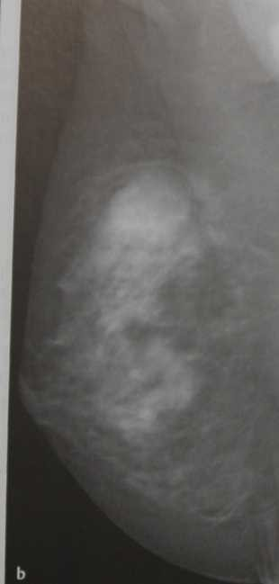 Снимки МРТ и КТ. Тубулярная аденома молочной железы