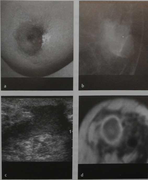 Снимки МРТ и КТ. Абсцесс молочной железы