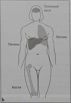 Снимки МРТ и КТ. CUP-синдром (рака с невыявленным первичным очагом)