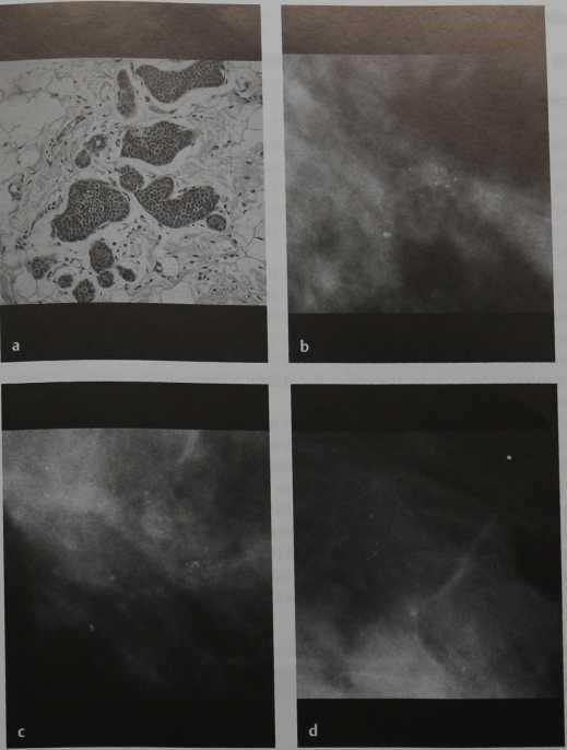 Снимки МРТ и КТ. Дольковый рак in situ (LCIS)