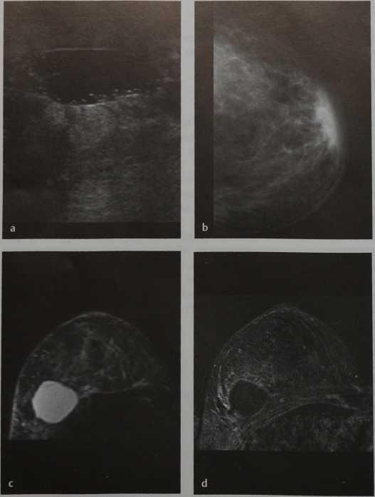 Снимки МРТ и КТ. Серома