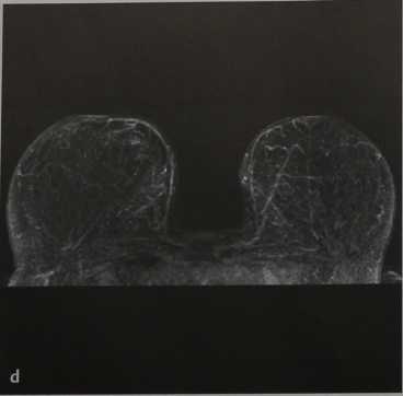 Снимки МРТ и КТ. Редукционная маммопластика
