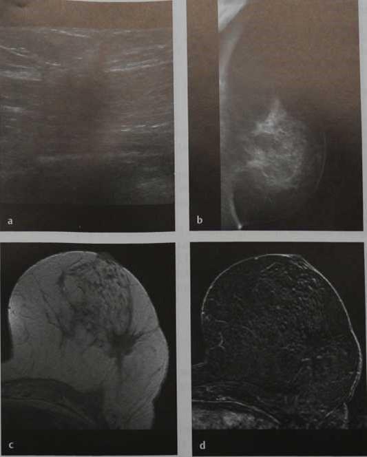 Снимки МРТ и КТ. Послеоперационные изменения
