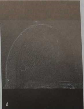 Снимки МРТ и КТ. Киста с жировым компонентом (олеогранулема)