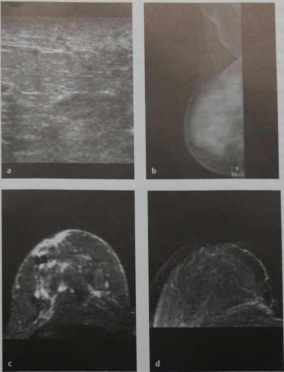Снимки МРТ и КТ. Изменения после лучевой терапии