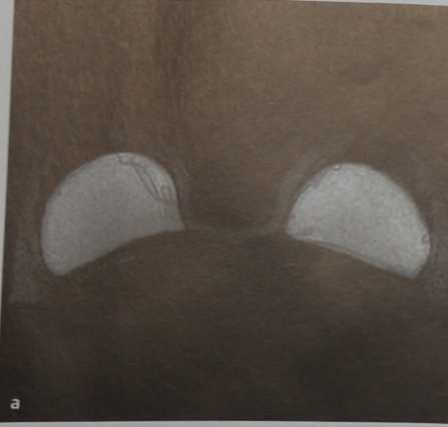 Снимки МРТ и КТ. Импланты молочных желез