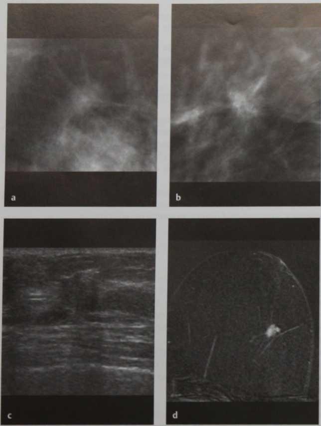 Снимки МРТ и КТ. Тубулярный рак
