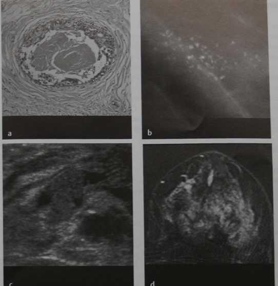 Снимки МРТ и КТ. Протоковый рак in situ высокой градации