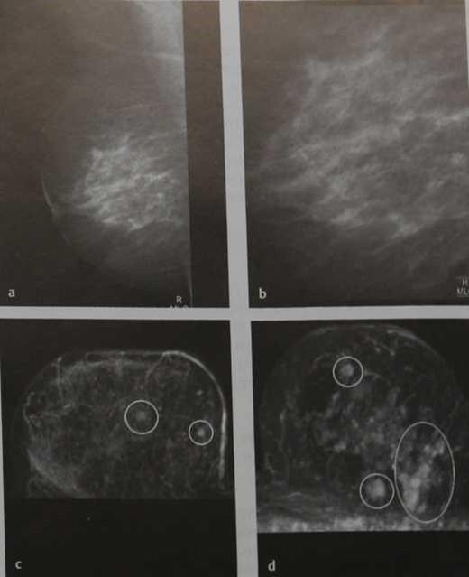 Снимки МРТ и КТ. Мультицентричность