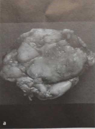 Снимки МРТ и КТ. Медуллярный рак