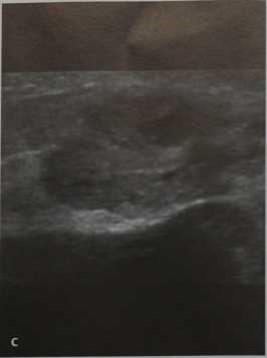 Снимки МРТ и КТ. Инвазивный папиллярный рак