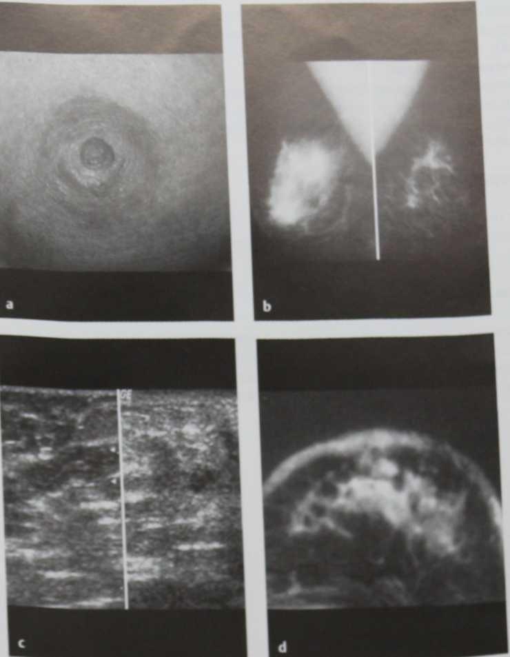 Снимки МРТ и КТ. Воспалительный рак молочной железы
