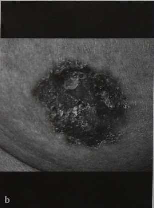 Снимки МРТ и КТ. Болезнь Педжета соска