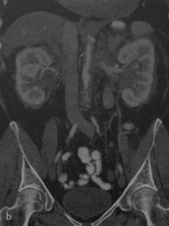 Снимки МРТ и КТ. Ретроперитонеальный фиброз