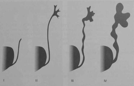 Снимки МРТ и КТ. Пузырно-мочеточниковый рефлюкс